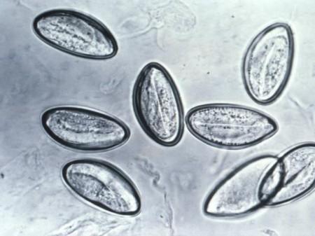enterobius vermicularis jaja