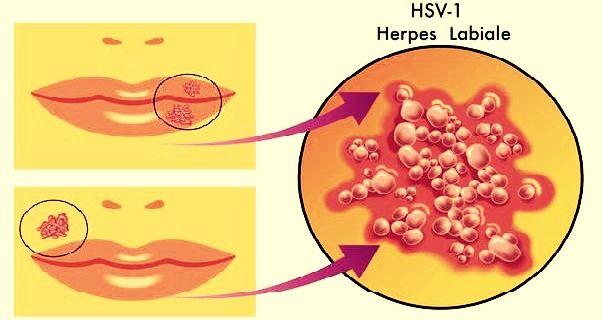 virus hpv guarigione papillomas and hpv