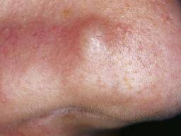 hpv on your face cancer testicular non seminomatous