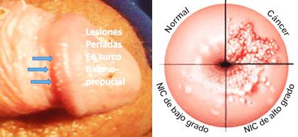 papilloma virus laser papilloma fibroma