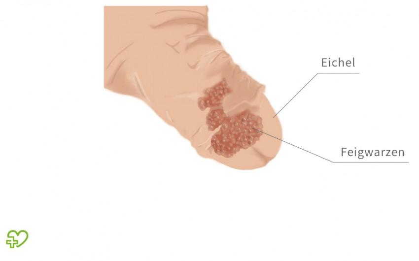 helminth therapy whipworm papiloma humano en hombres como se cura