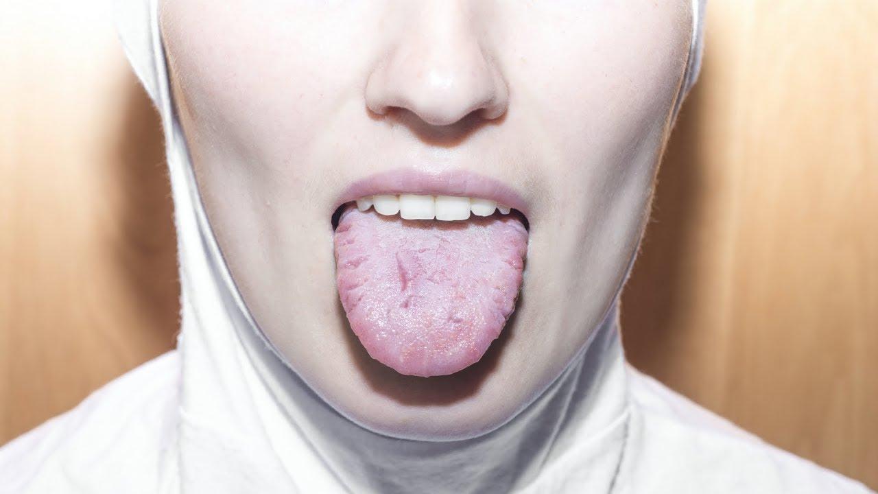 cancer la gura simptome