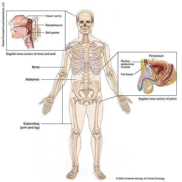 de cancer la oase - Traducere în engleză - exemple în română   Reverso Context