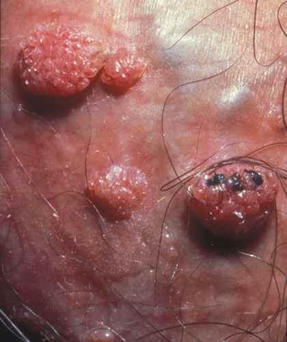 papilloma and dcis human papillomavirus vaccine opinions