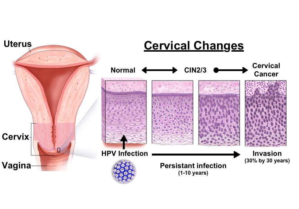 hpv cancer cells cervix wart on foot podiatrist or dermatologist