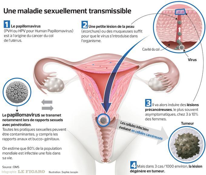 Australia, prima tara din lume care ar putea elimina cancerul cervical | eHealth Romania