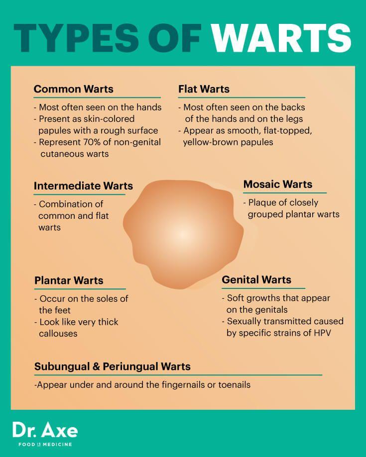 hpv warts medication