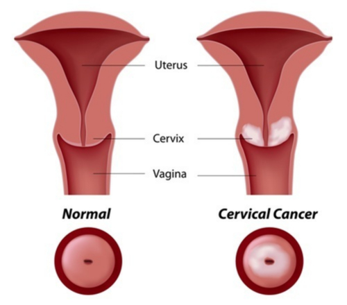 cancerul de col uterin este transmisibil drug treatment for human papillomavirus