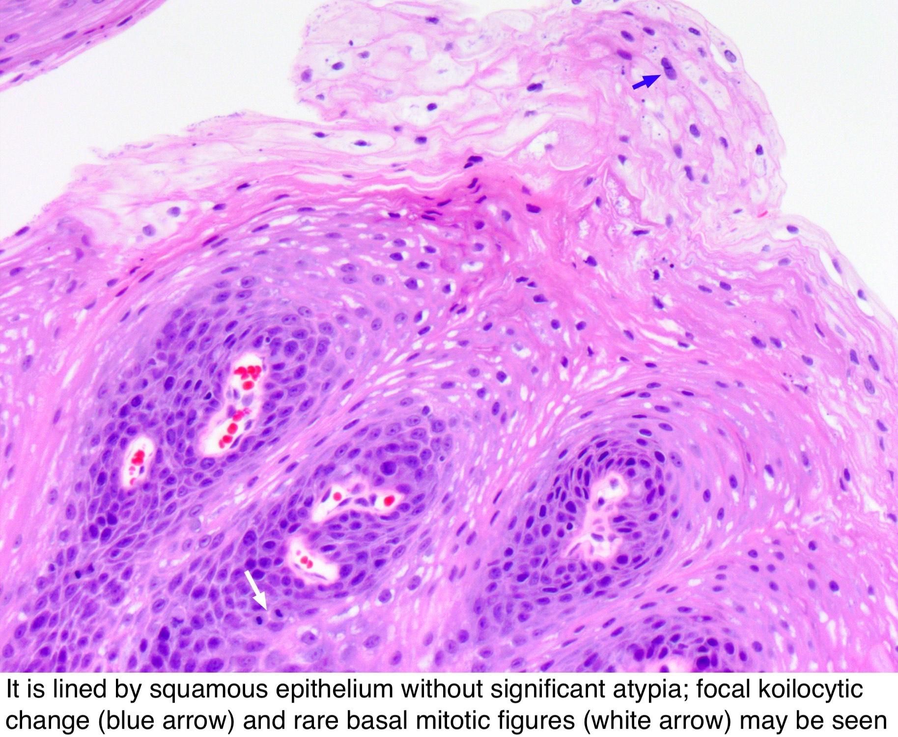 cancer genetic instability epidermal papillomatosis icd 10