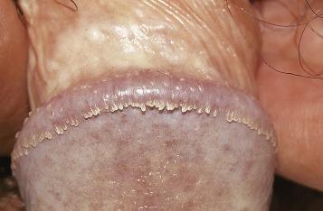 papiloma genitale