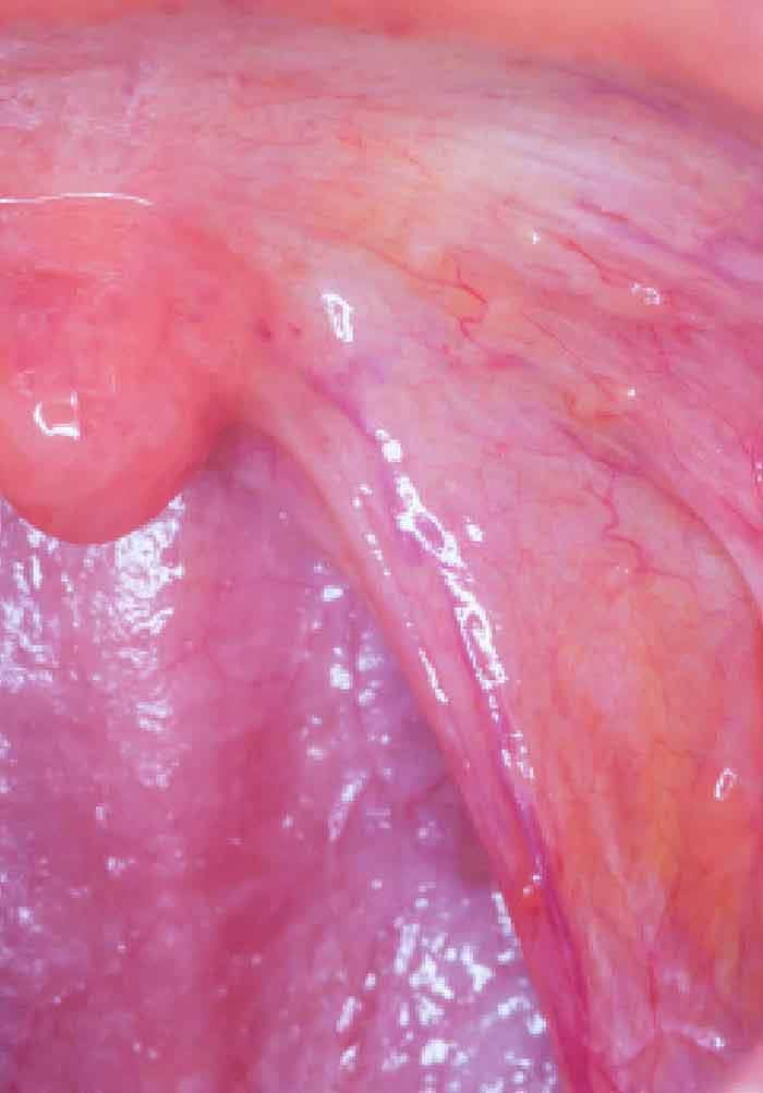 respiratie urat mirositoare bebelusi human papillomavirus vaccine ppt