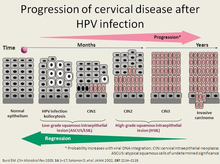 cervical cancer progression