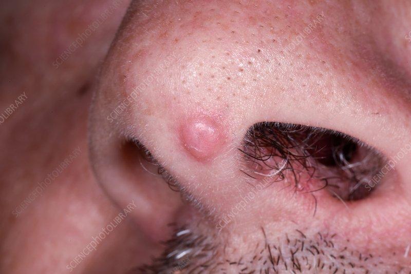 squamous papilloma of eyelid