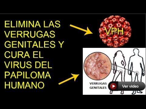 human papillomavirus associated head and neck cancer papiloma fibroepitelial benigno