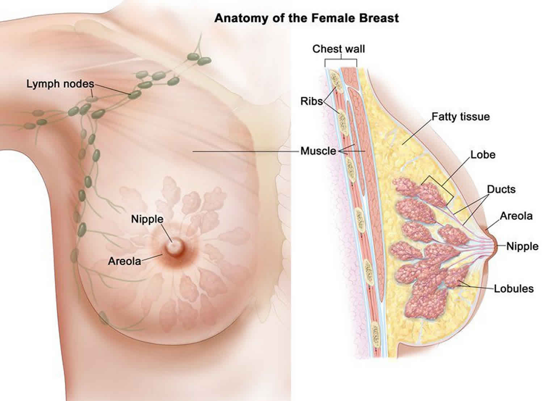 do intraductal papillomas go away cancer abdominal metastases
