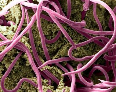 enterobius vermicularis nhs
