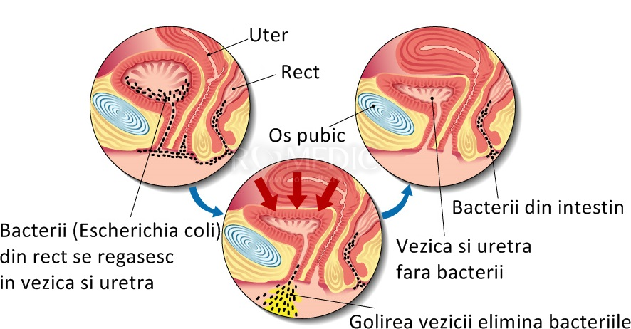 bacterii tract urinar