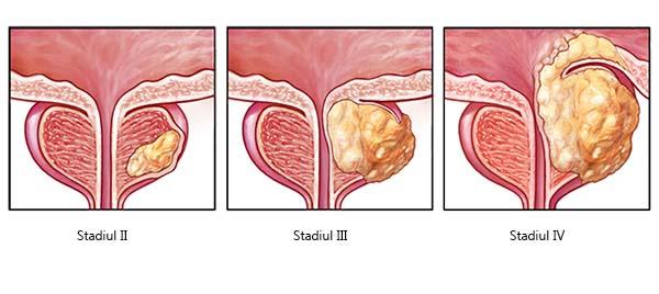 cancerul de prostata recidiva