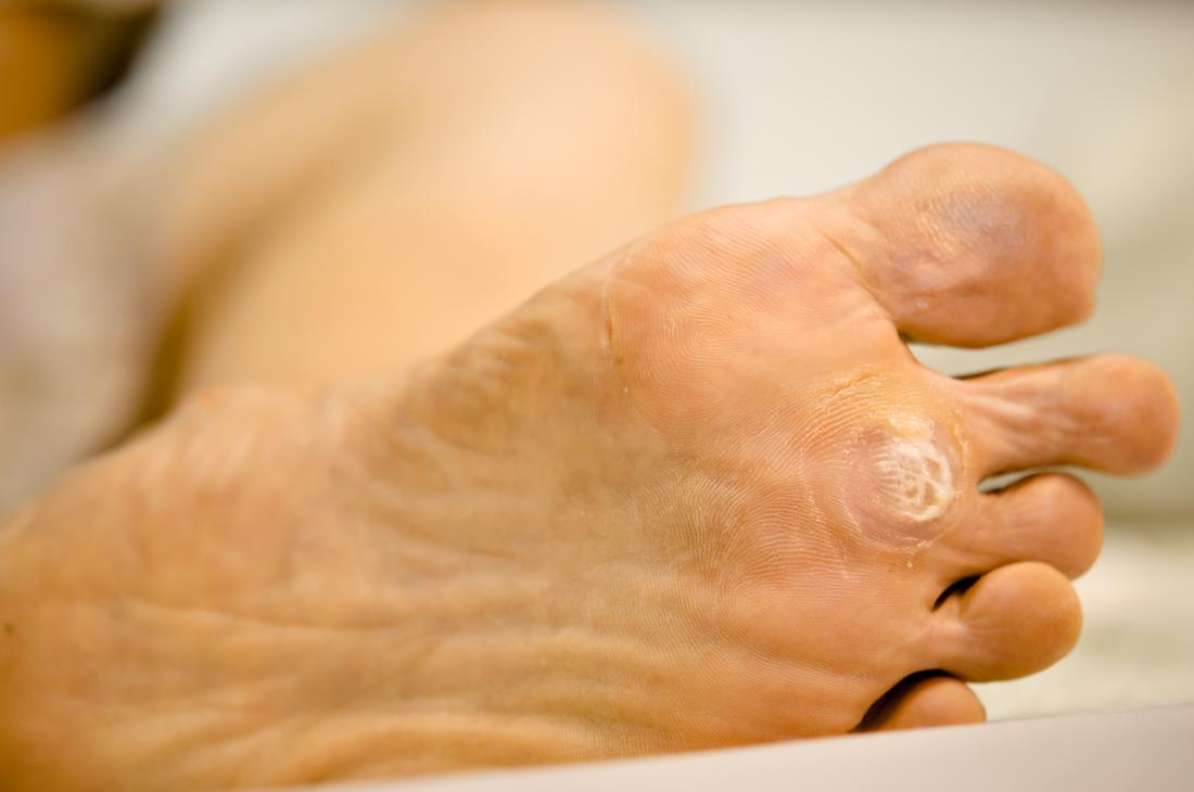 wart foot bleeding