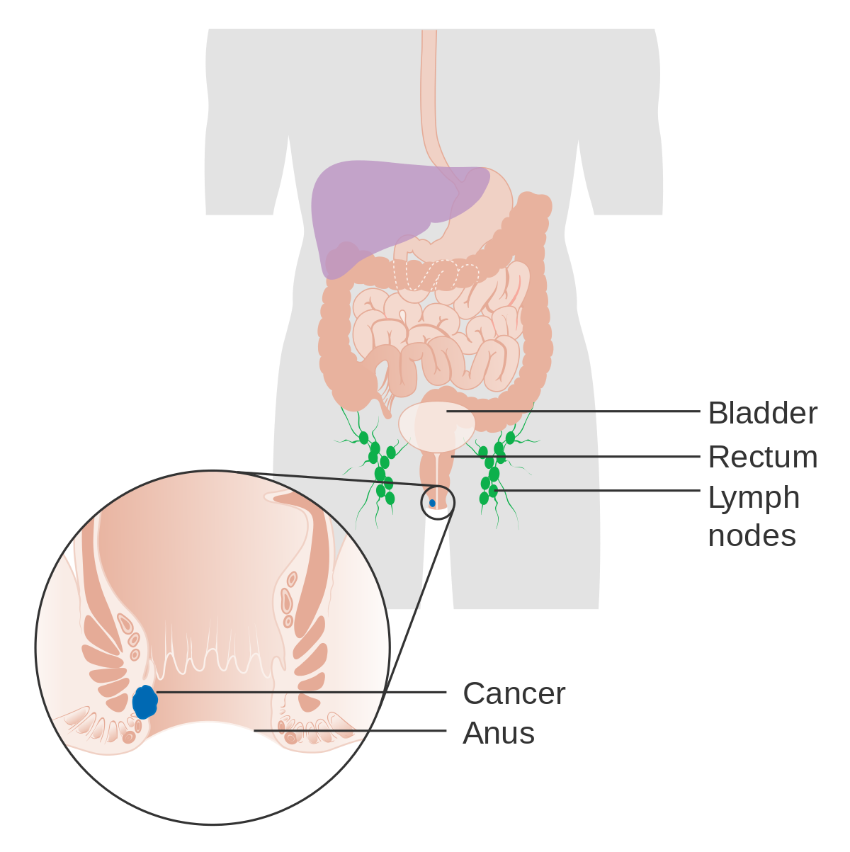 Efecte adverse ale vaccinului anti-HPV. Ce cred japonezii