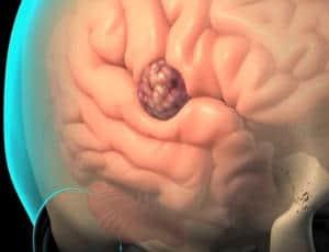 cancer cerebral definicion cancerul de colon simptome si cauze