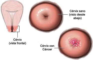 virus del papiloma humano fase 1 toxin 20