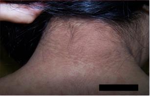 que es papilomatosis confluente y reticulada