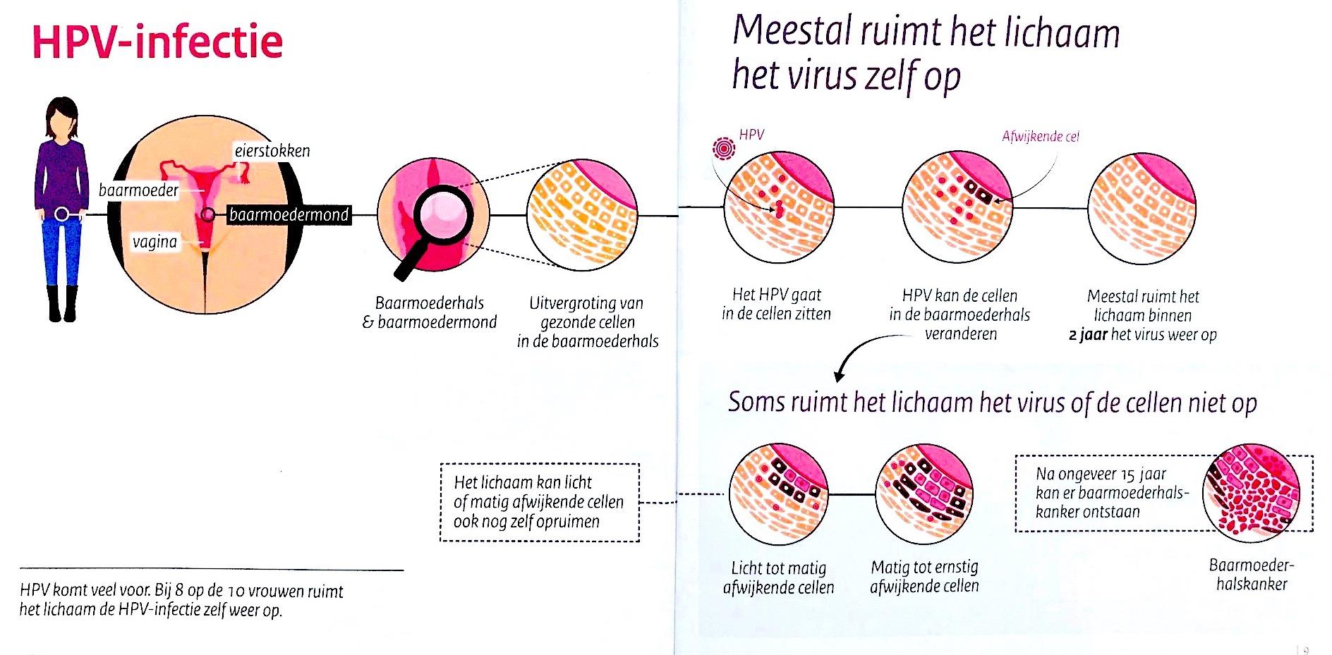 hpv virus en soa warts on skin types