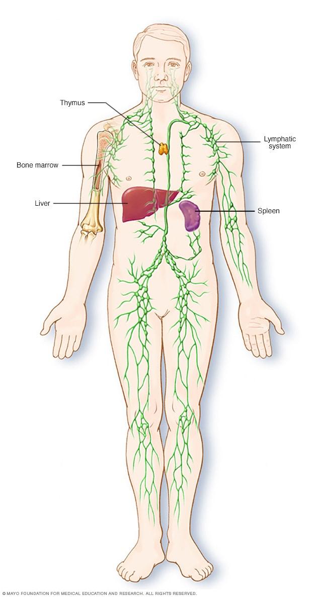 que es cancer linfatico sintomas