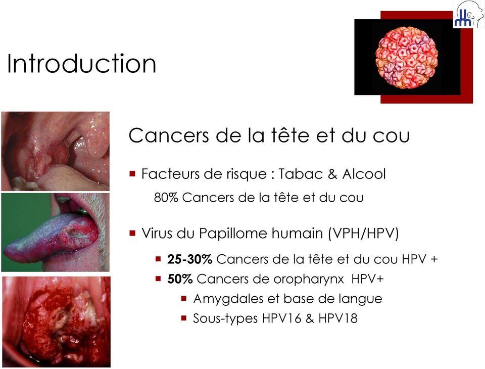 papiloma humano produce cancer