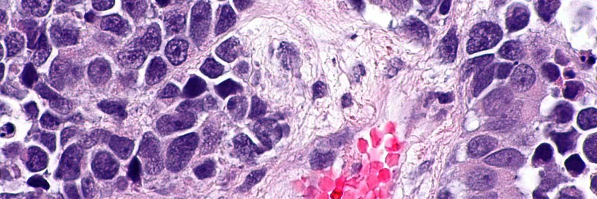 remboursement vaccin papillomavirus garcons is human papillomavirus contagious