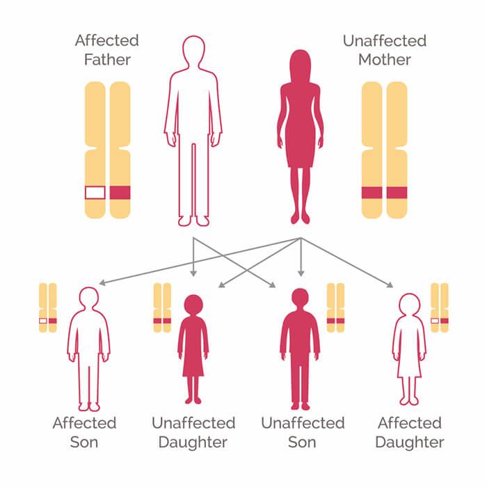 metastatic cancer hereditary cancer pancreas genetique
