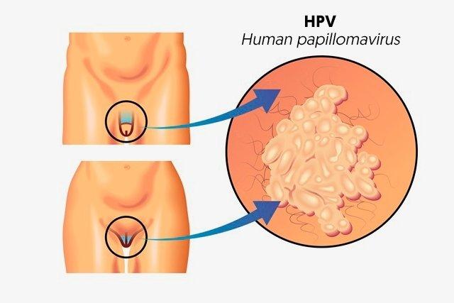hpv bumps treatment