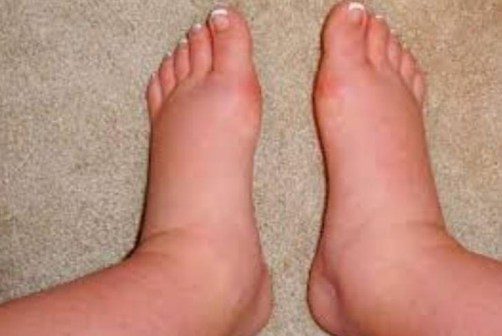 tratamente folclorice de la picioarele varicoase)