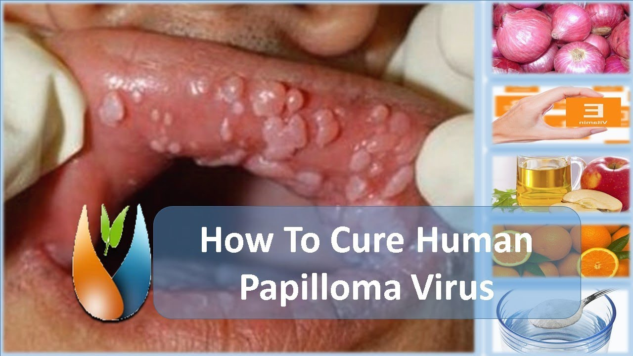 cure for papiloma hpv impfung folgeschaden