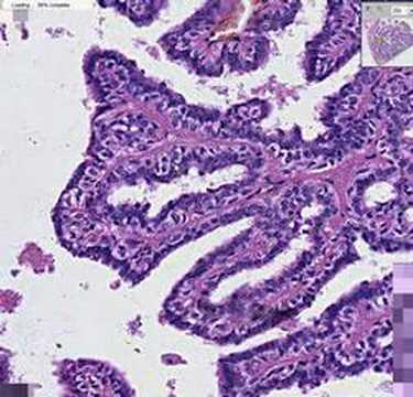 intraductal papillomatosis histopathology