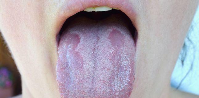 bacterii bucale