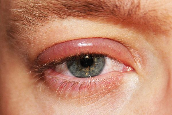 home remedy for eyelid papilloma
