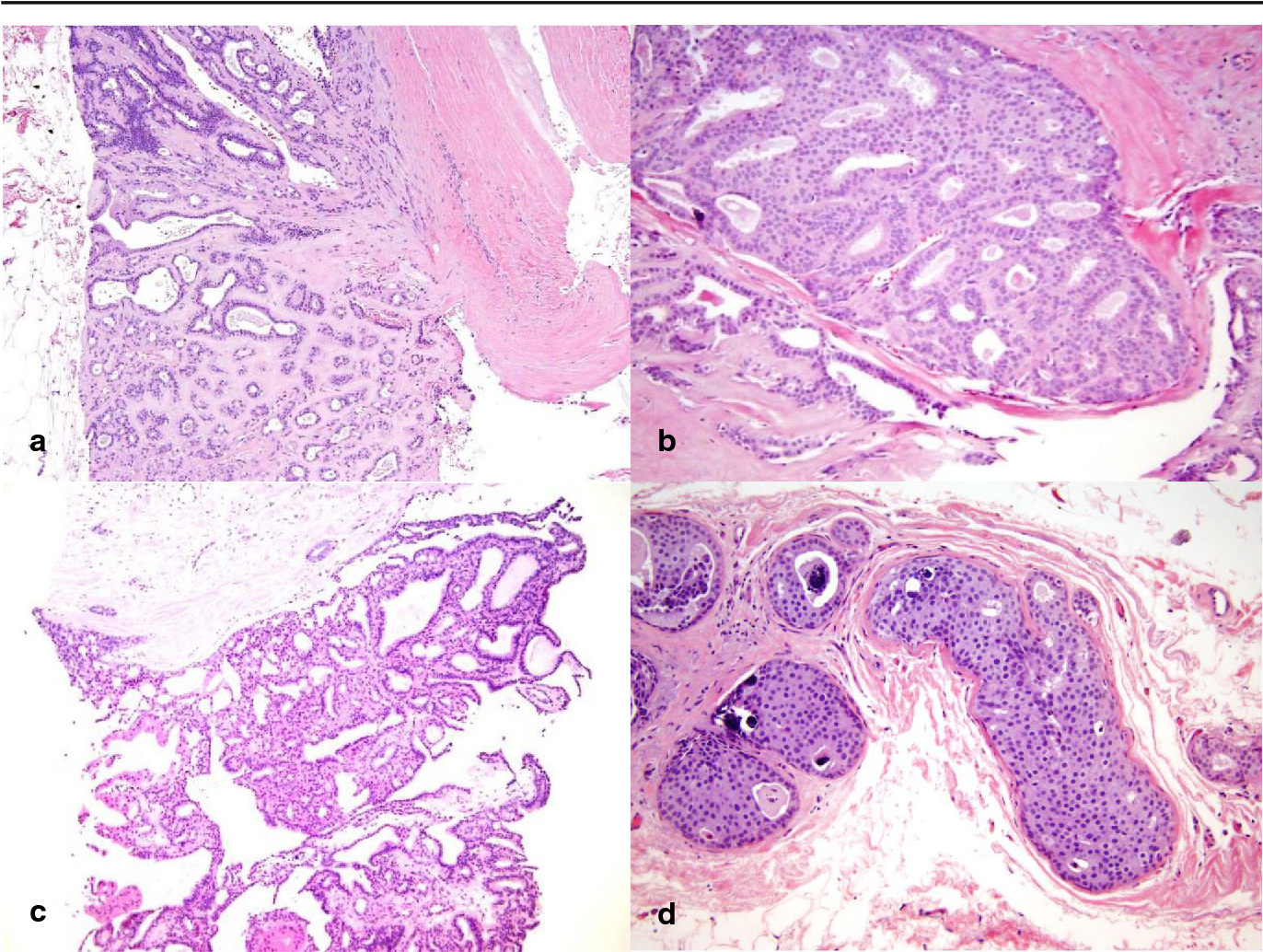 Breast Pathology, Diagnosis by Needle Core Biopsy - primariabeuca.ro