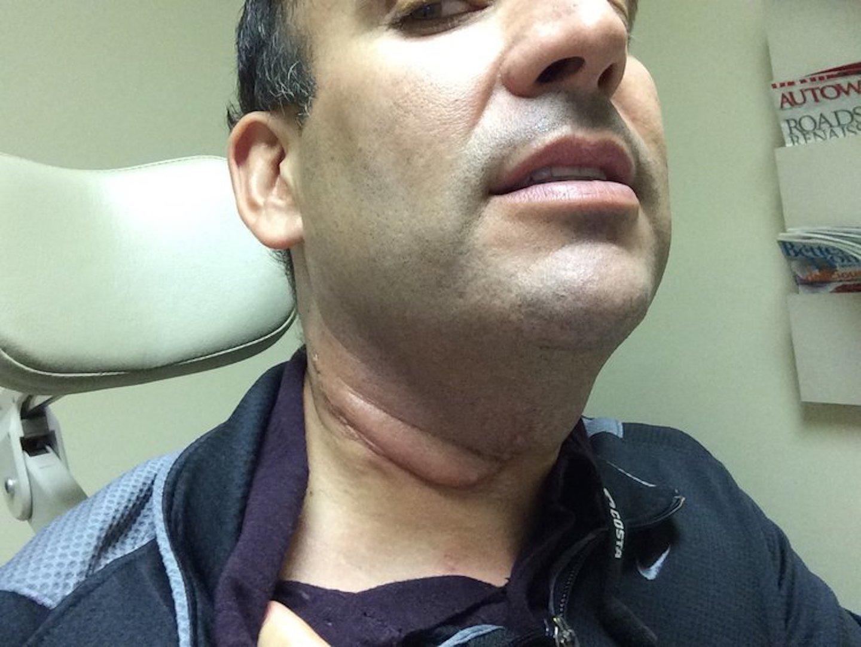 papilloma virus sintomi maschili