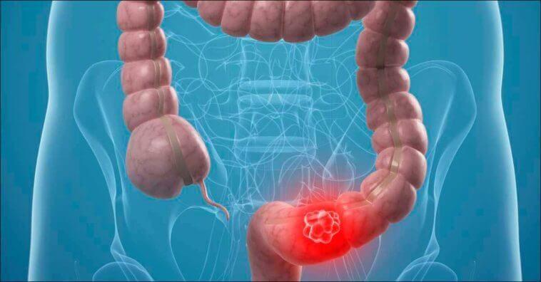Screeningul pentru cancerul colo-rectal