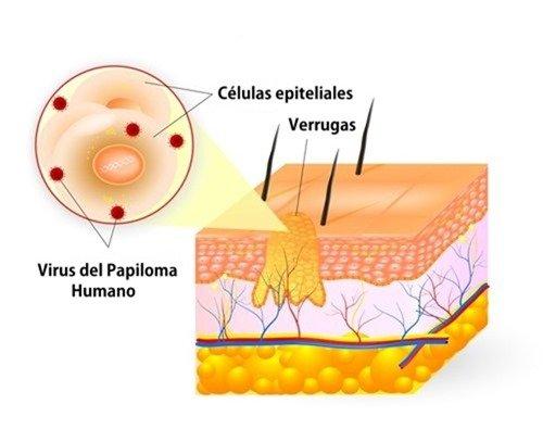 papiloma humano causas sintomas tratamiento y prevencion hpv contagio mujer a hombre