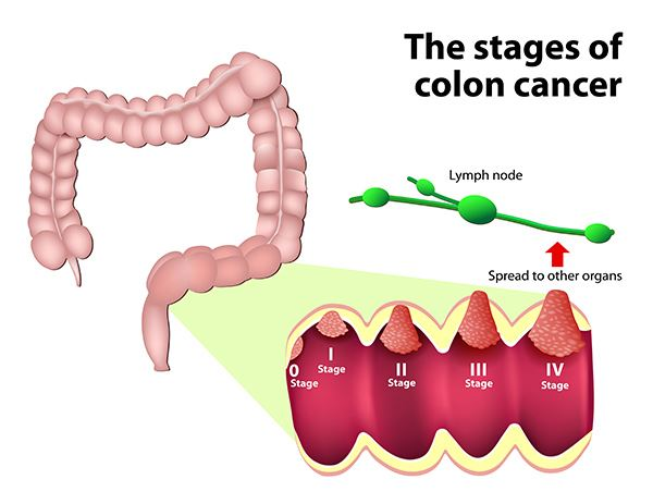 cancer rectal staging