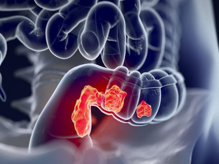 Sintomas de prostatită în caninos