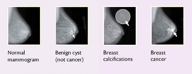 breast cancer benign lump