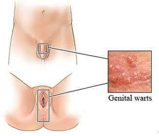 human papillomavirus symptoms in males paraziti zarnas simptomi