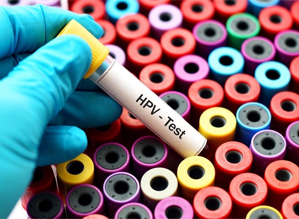 papilloma virus col uterin