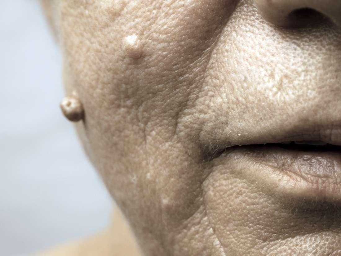 hpv causes warts on face herpes genitale papilloma