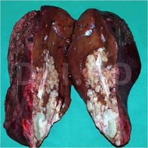 Cum apare cancerul de ficat. Simptomele acestei afecţiuni oncologice