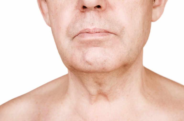 cancerul de ficat in metastaza